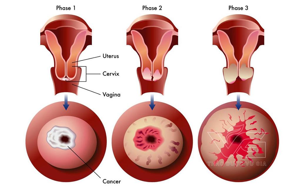 Những Bệnh Phụ Khoa Thường Gặp Ở Phụ Nữ